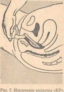 bivayut-li-chiri-na-vlagalishe